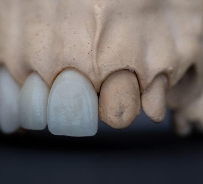 causas y tratamientos de la pérdida de los dientes